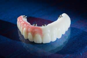 DuraTemps PMMA provisional restorations produced by Burbank Dental Lab