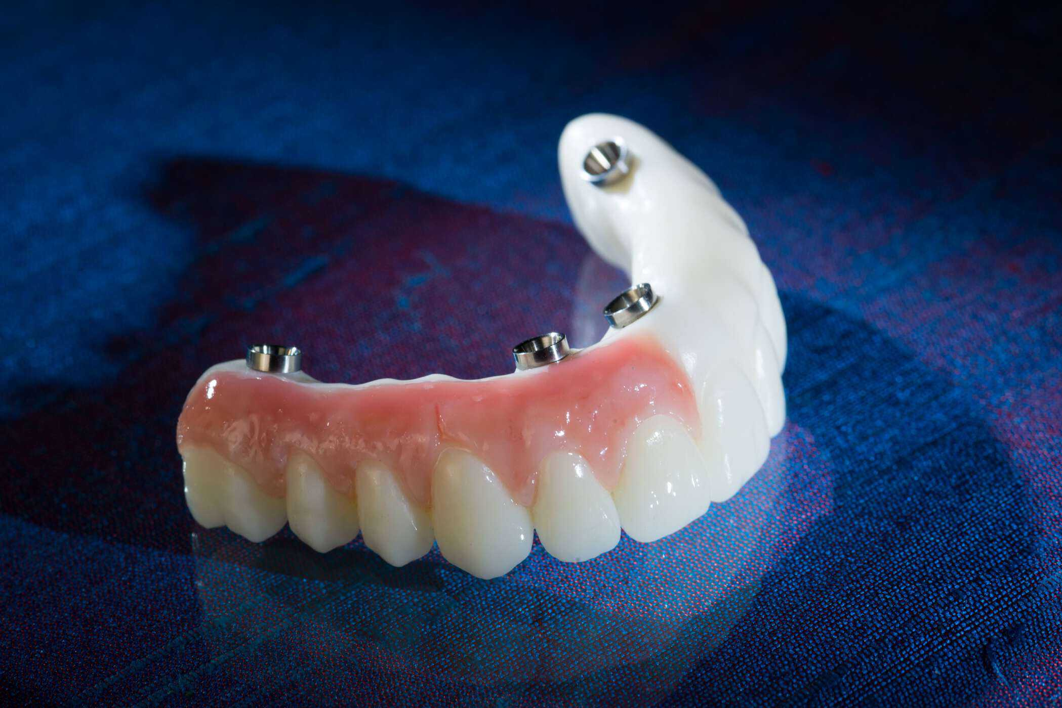 DuraTemps PMMA provisionals produced by Burbank Dental Lab