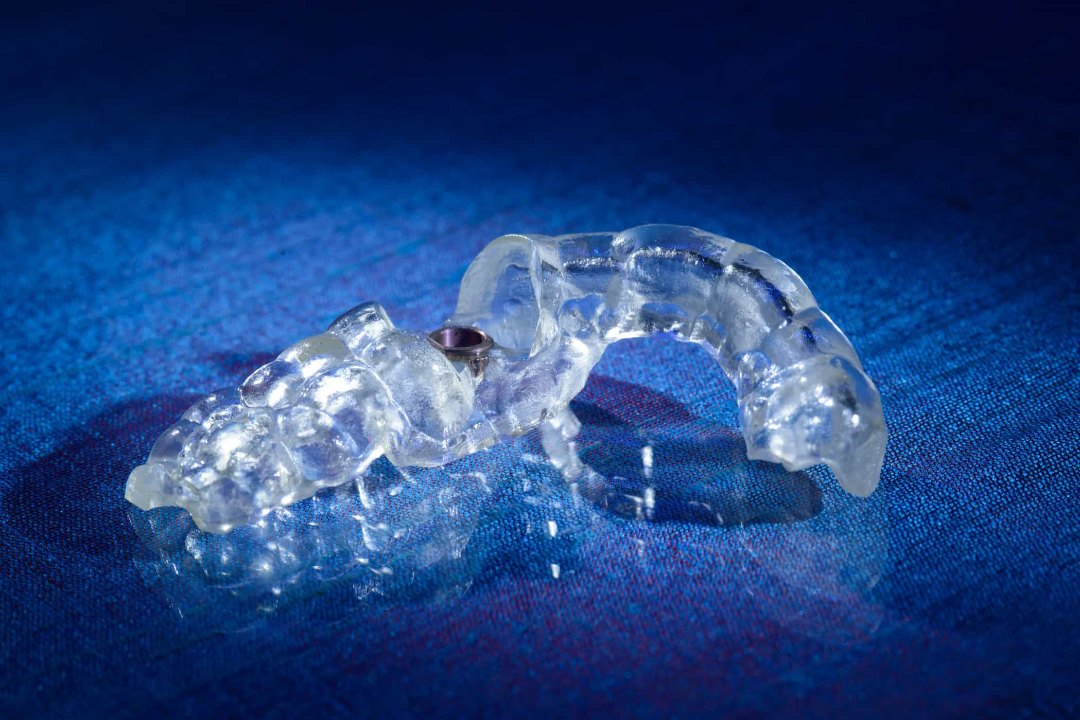 Guided Surgery Appliance created by Burbank Dental Lab