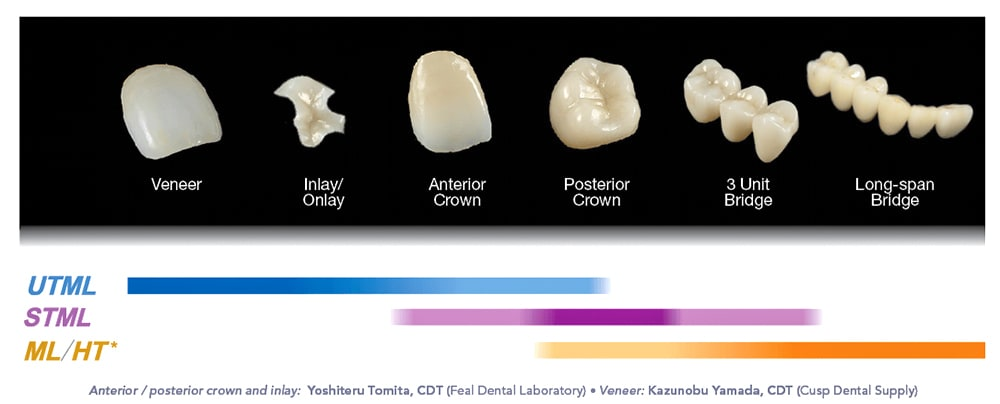UTML - Inlay & Onlays, anterior crowns, Posterior crowns