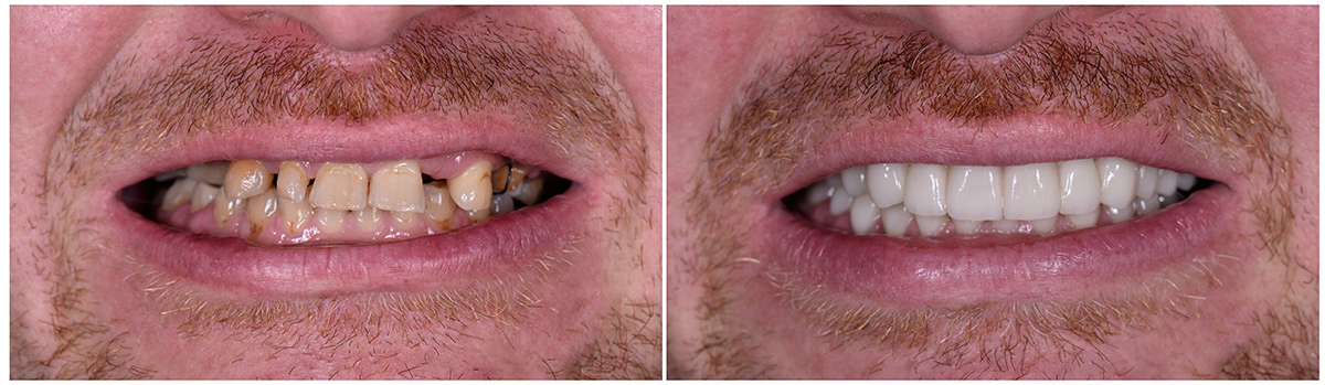 Before and After Final Restorations